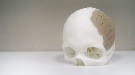 opm_skull