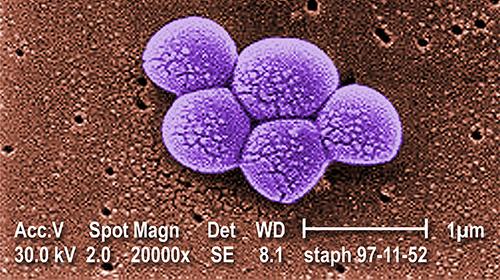 De MRSA-bacterie (20.000x vergroot)
